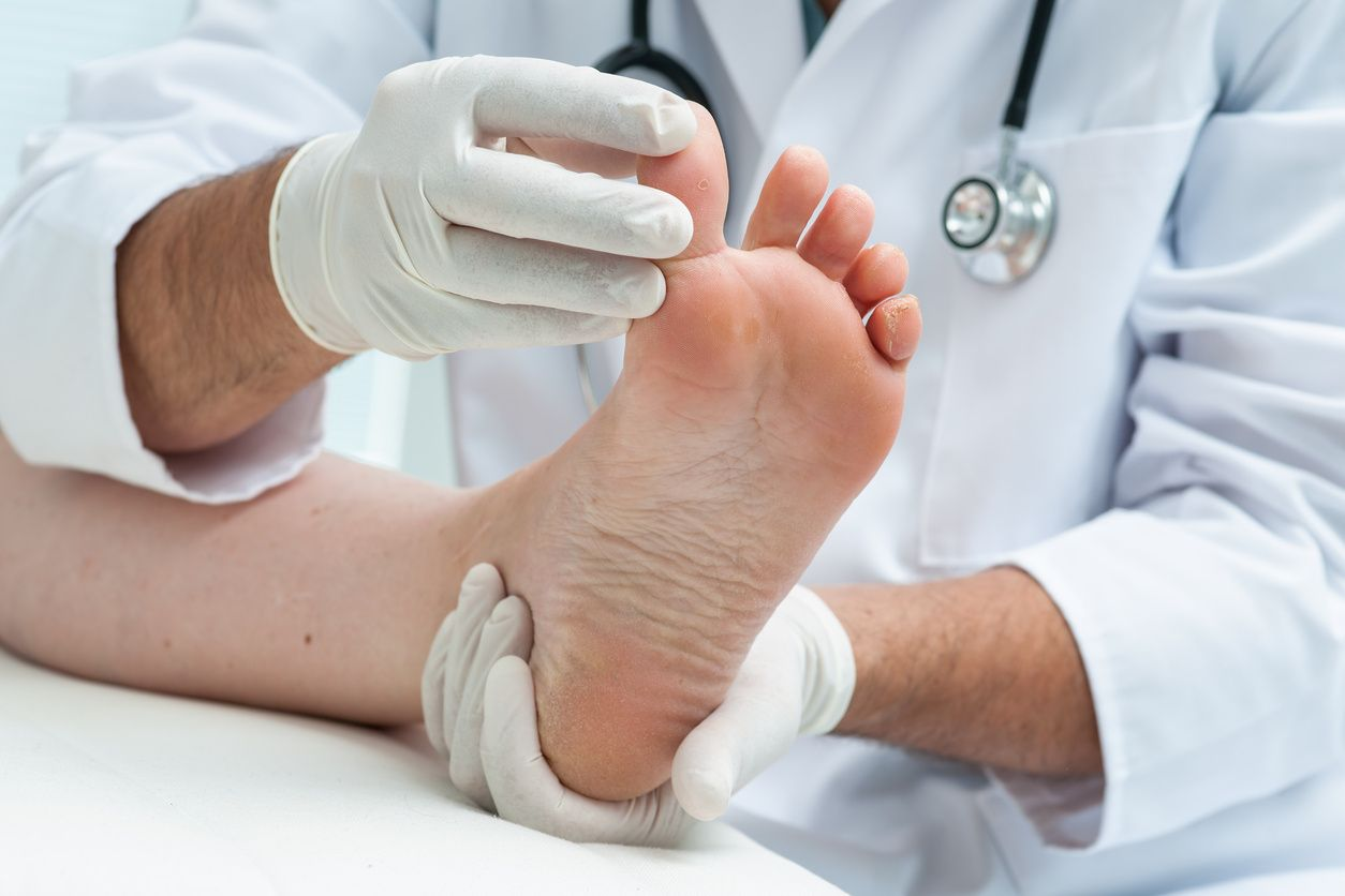 chiropody or chiropodist. Man in white coat practicing chiropody or podiatry, assessing a patients feet, specifically right big toe