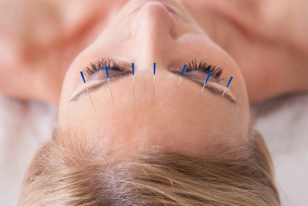 acupuncture needles for facial or cosmetic acupuncture