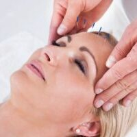 facial acupuncture on female patient