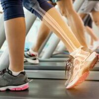 foot assessment, biomechanical & gait analysis