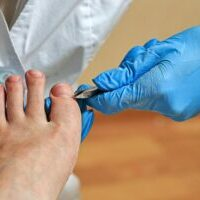 foot care, surgery