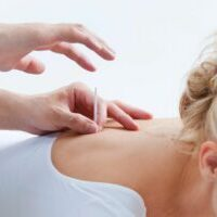 acupuncture near spinal cord